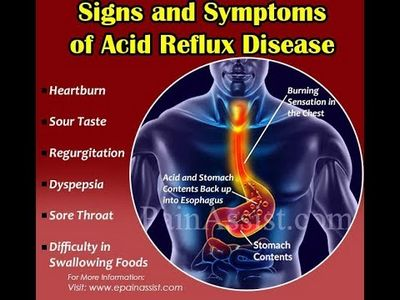 How to Identify Gastric Acid Reflux Symptoms the upper